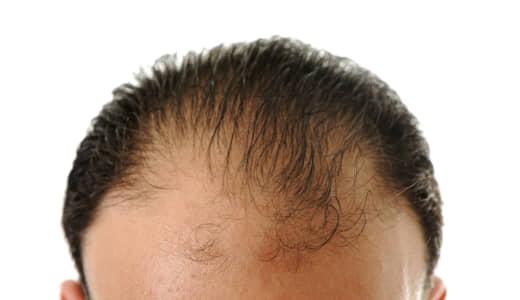 毛髪の悩み解決か! 2020年には実用化も